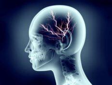 Ursachen von Alzheimer und Mobilfunk